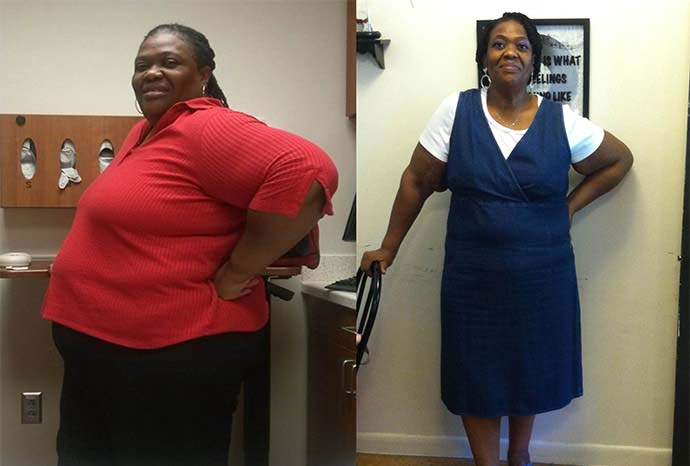 Before And After Gastric Bypass 1 Year Obesity Coverage