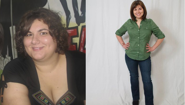 Jenna Before And After Gastric Bypass Obesity Coverage