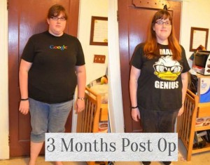Fallon's before and after gastric bypass at 3 months.