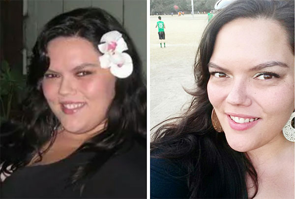 Britt Before And After Gastric Bypass Obesity Coverage