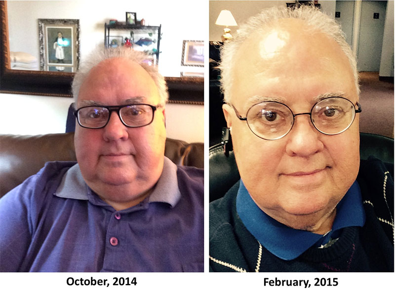Bariatric Surgery At Age 65