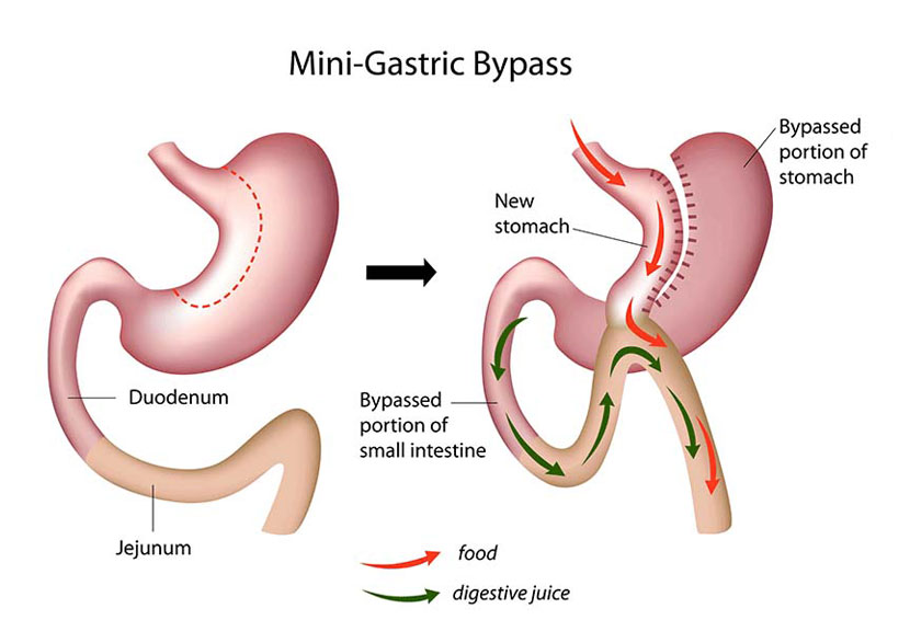 Mini gastric bypass procedure.