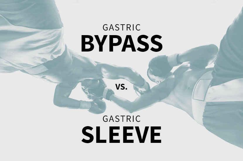 Gastric Bypass Vs Gastric Sleeve Surgery