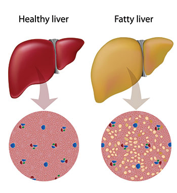 Fatty liver disease compared to healthy liver.