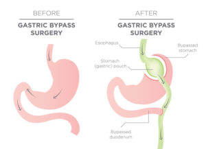 Gastric bypass diagram.